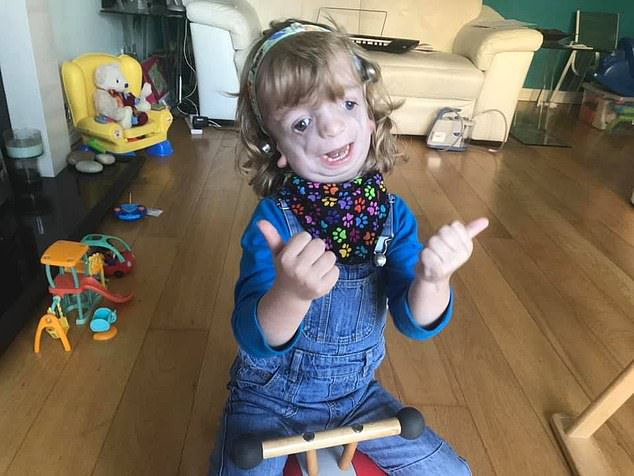 Ryan Henry-Macklin, who has Treacher Collins Syndrome, will not be able to start school in September due to his tracheostomy